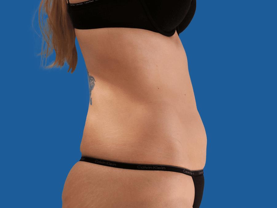 Abdomen - Nachher · 4 Monate nach einer Behandlung Keine Gewichtsveränderung