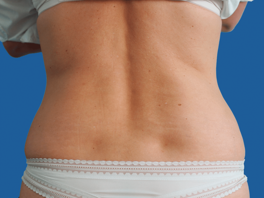 Taille - Nachher · 12 Monate nach einer Behandlung Keine Gewichtsveränderung
